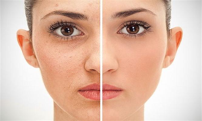 El láser para rejuvenecer la piel
