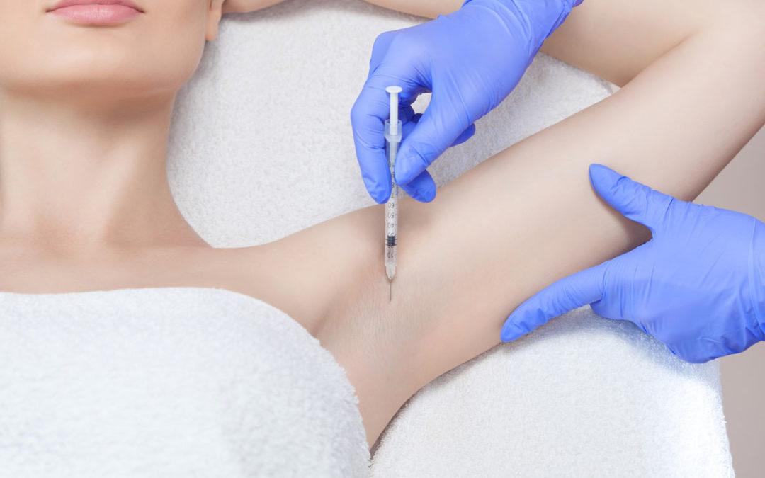 Bótox como tratamiento para hipersudoración y líneas de expresión
